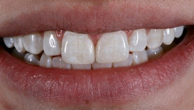 Closeup of teeth after gap is closed