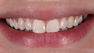Smile after gap in teeth is closed