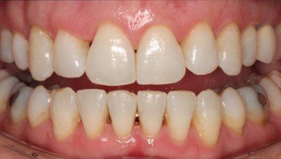 Properly aligned bottom teeth