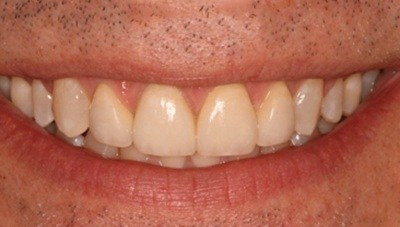 Healthy repaired front teeth