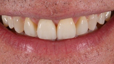 Closeup of healthy repaired front teeth