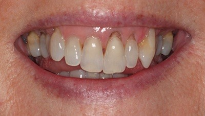 Damaged and decayed front teeth