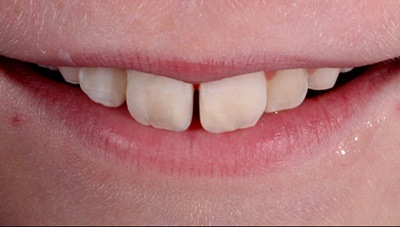 Chipped front teeth flawlessly repaired