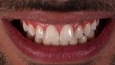 Smile after gap between front teeth is closed