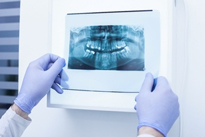 examining dental X-ray