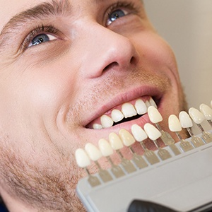 Man S Smile Compared With Tooth Color Chart