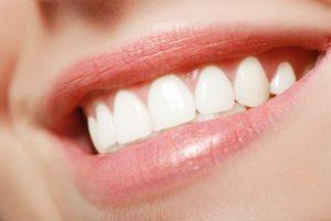 Beautiful smile with veneers